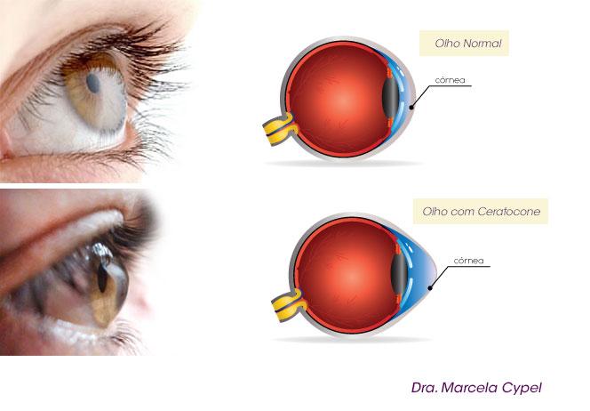 0303030c5a675 O paciente pode relatar mudanças frequentes na prescrição de óculos ou  diminuição na tolerância ao uso de lentes de contato.